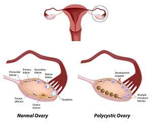 Polycystic-Ovaries1